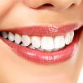 Bleaching - für ein strahlend weisses Lächeln