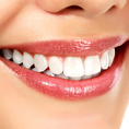 Bleaching - ein strahlend weisses Lächeln