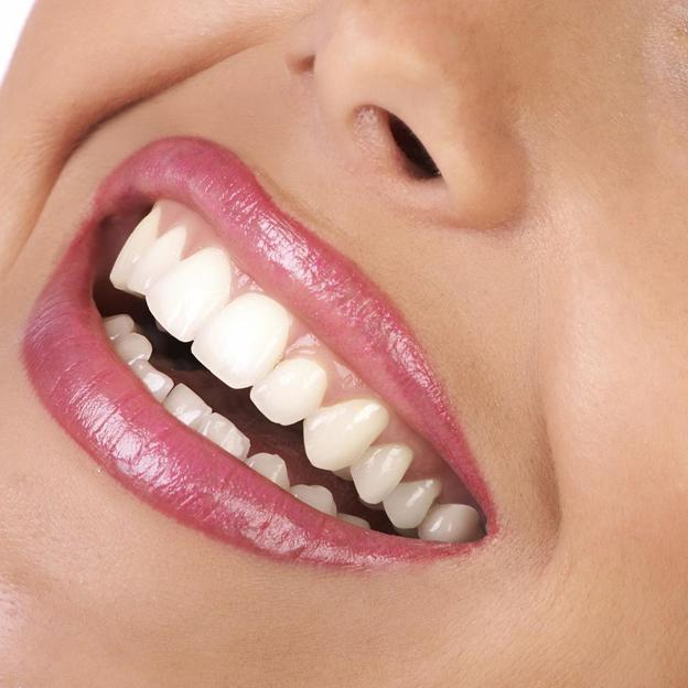 Pose d'un bijou dentaire Swarovski (Saint-Gall)