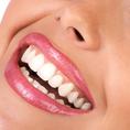 Bleaching & Zahnreinigung