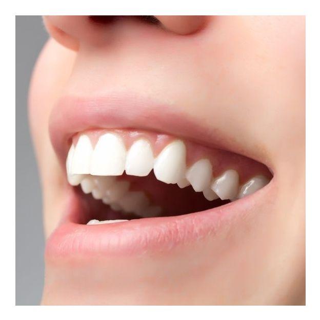 Zahnreinigung mit Befundaufnahme durch Zahnarzt
