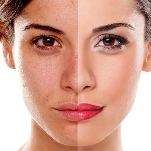 Luxus Gesichtsbehandlung mit Hyaluron (für 1 Person)