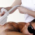 Dauerhafte Haarentfernung mit SHR Ganzkörper